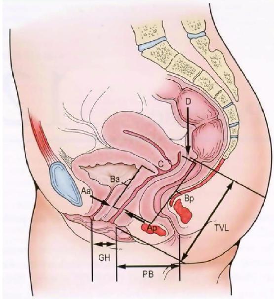 Отсутствие оргазма во влагалище