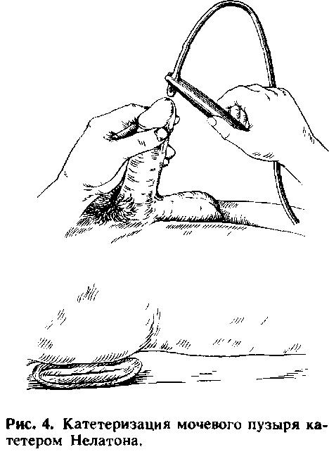 Как сделать катетеризацию мочевого пузыря