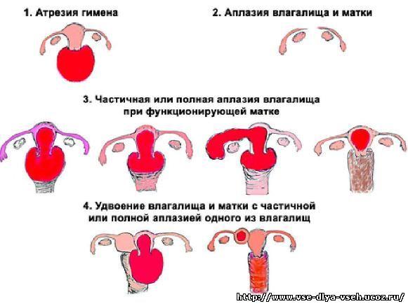 agapova-lena-sosat-hochet